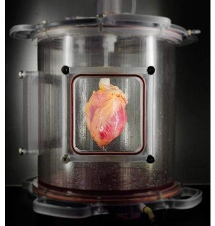Восстановленные органы могут спасти миллионы людей, стоящих в очереди на трансплантацию